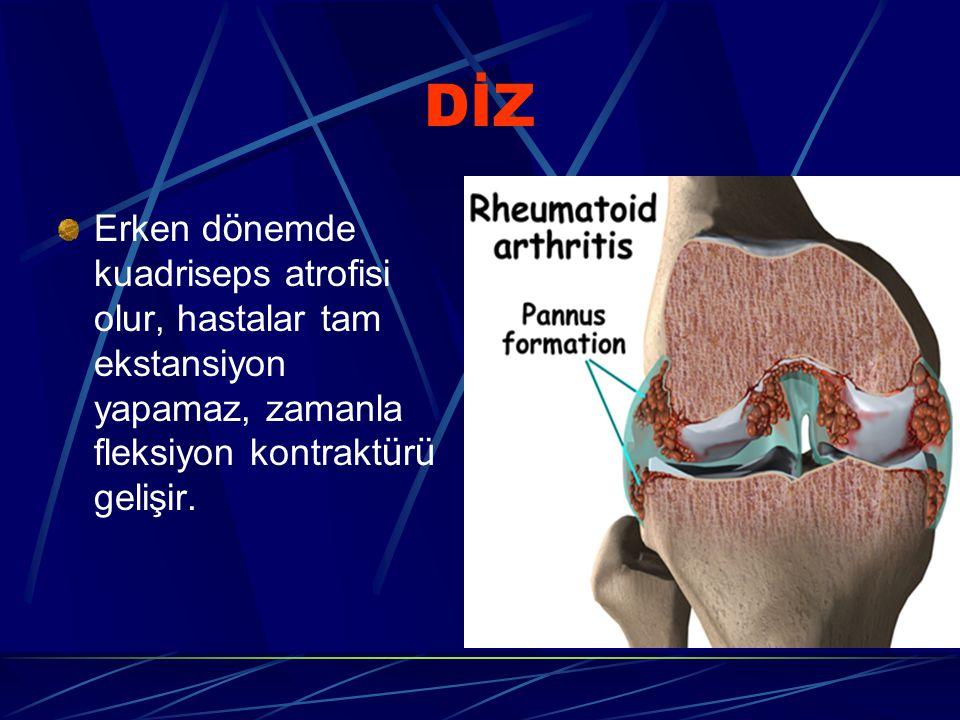 DİZ Erken d ö nemde kuadriseps atrofisi olur, hastalar tam ekstansiyon yapamaz, zamanla fleksiyon kontrakt ü r ü gelişir.