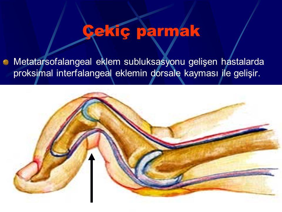 Çekiç parmak Metatarsofalangeal eklem subluksasyonu gelişen hastalarda proksimal interfalangeal eklemin dorsale kayması ile gelişir.
