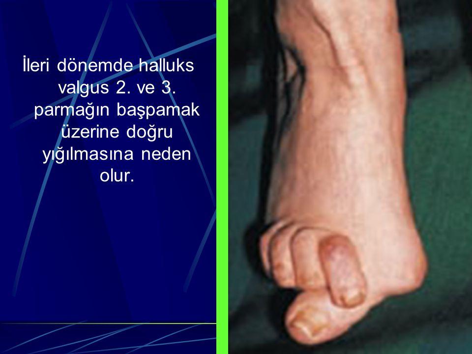 İleri dönemde halluks valgus 2. ve 3. parmağın başpamak üzerine doğru yığılmasına neden olur.