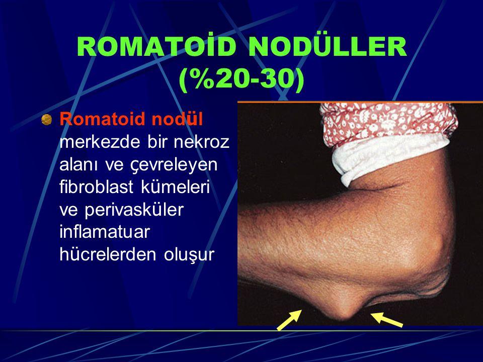 ROMATOİD NOD Ü LLER (%20-30) Romatoid nod ü l merkezde bir nekroz alanı ve ç evreleyen fibroblast k ü meleri ve perivask ü ler inflamatuar h ü crelerden oluşur