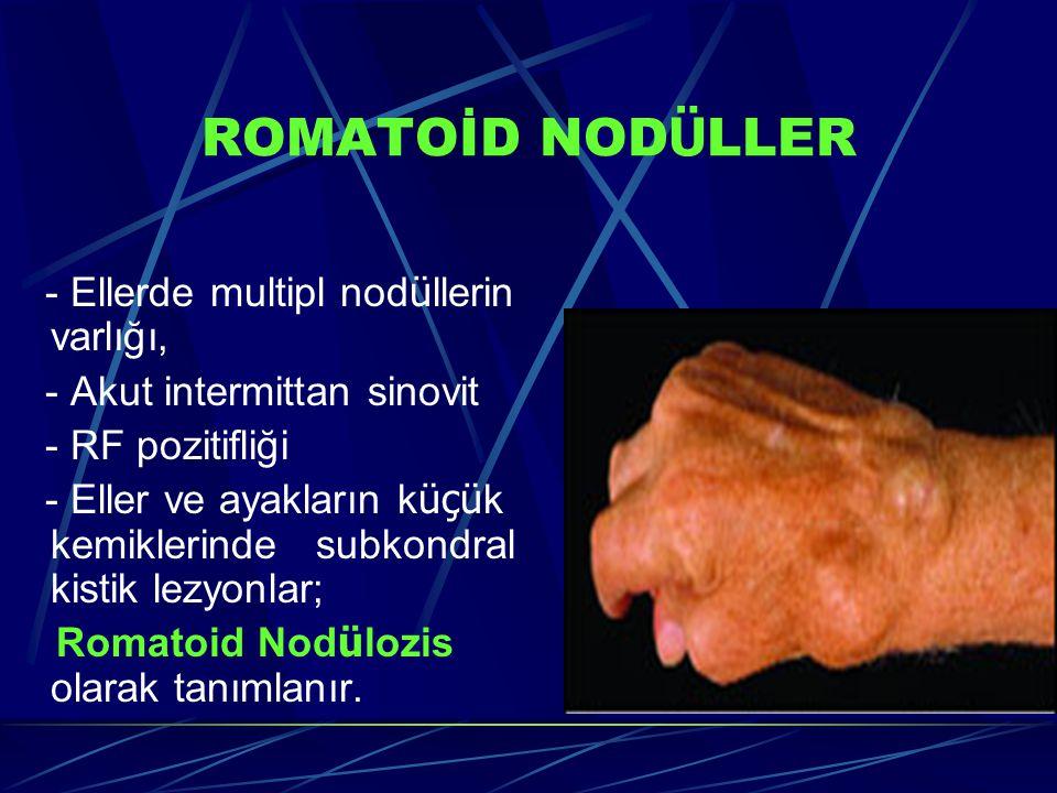 ROMATOİD NOD Ü LLER - Ellerde multipl nod ü llerin varlığı, - Akut intermittan sinovit - RF pozitifliği - Eller ve ayakların k üçü k kemiklerinde subkondral kistik lezyonlar; Romatoid Nod ü lozis olarak tanımlanır.