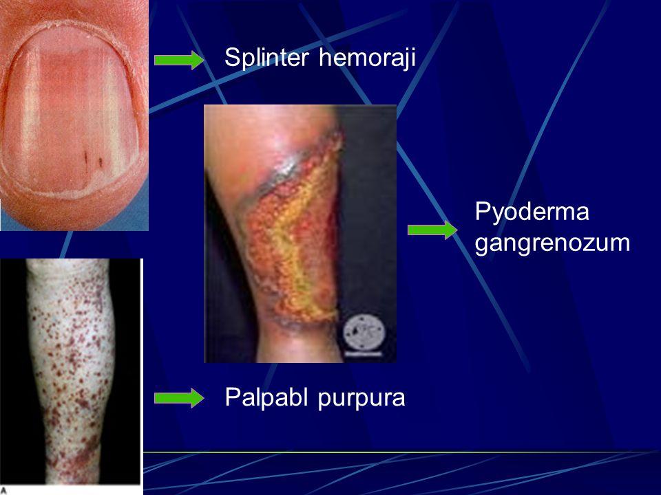 Splinter hemoraji Palpabl purpura Pyoderma gangrenozum