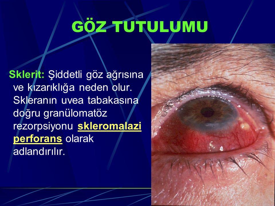 G Ö Z TUTULUMU Sklerit: Şiddetli g ö z ağrısına ve kızarıklığa neden olur. Skleranın uvea tabakasına doğru gran ü lomat ö z rezorpsiyonu skleromalazi