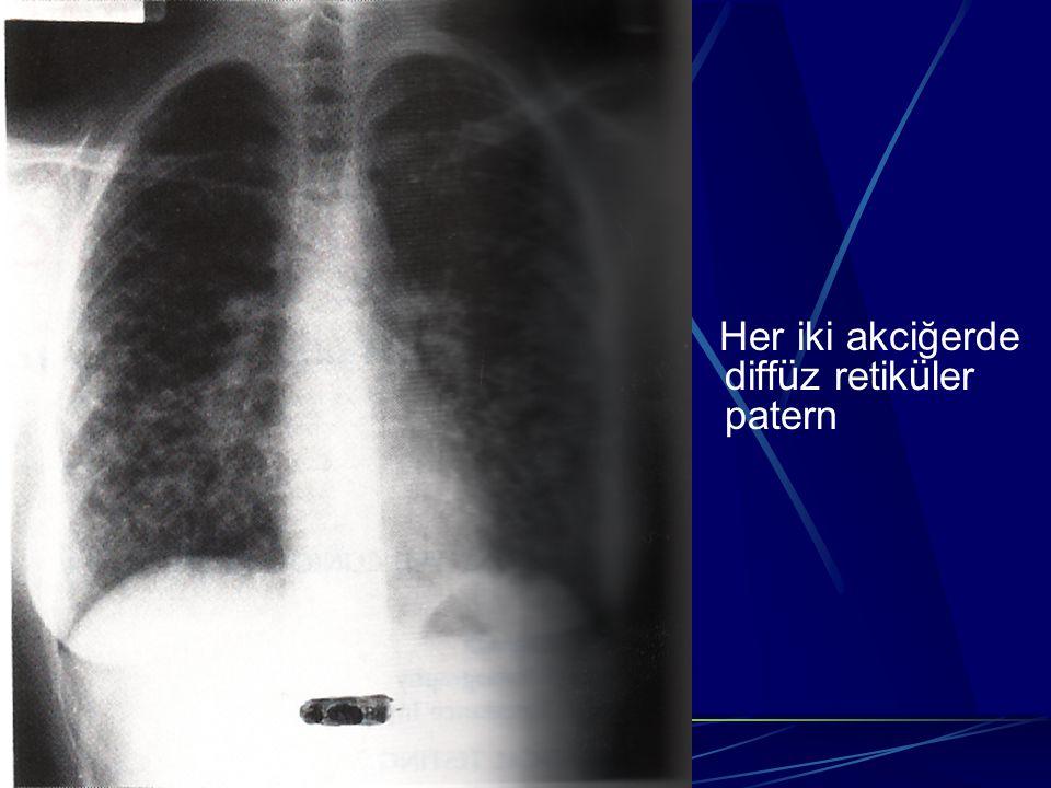 Her iki akciğerde diff ü z retik ü ler patern