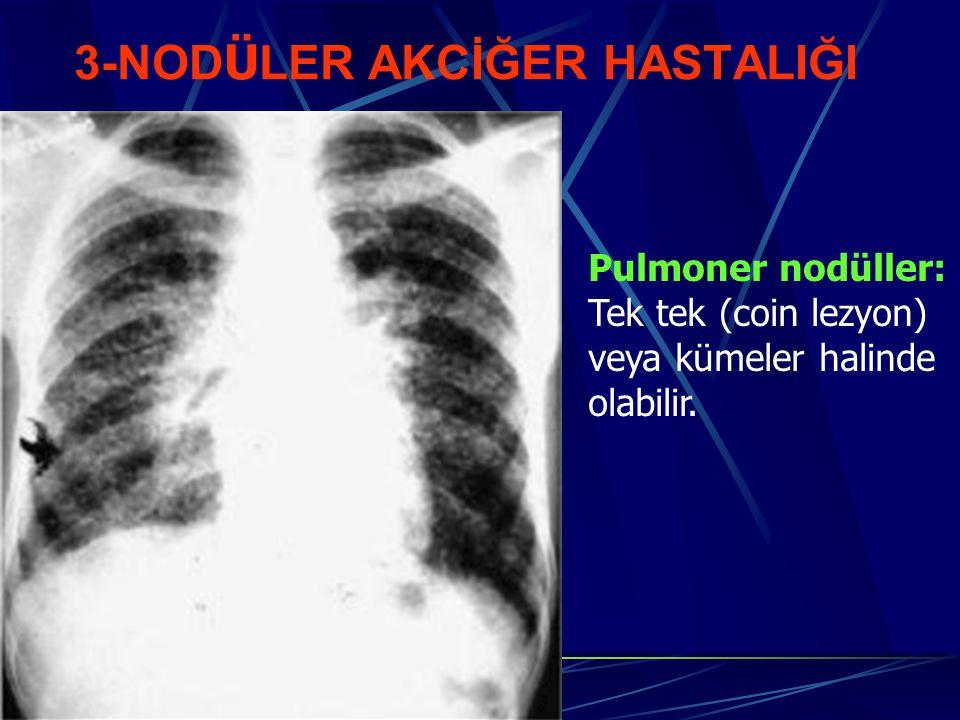 3-NOD Ü LER AKCİĞER HASTALIĞI Pulmoner nodüller: Tek tek (coin lezyon) veya kümeler halinde olabilir.