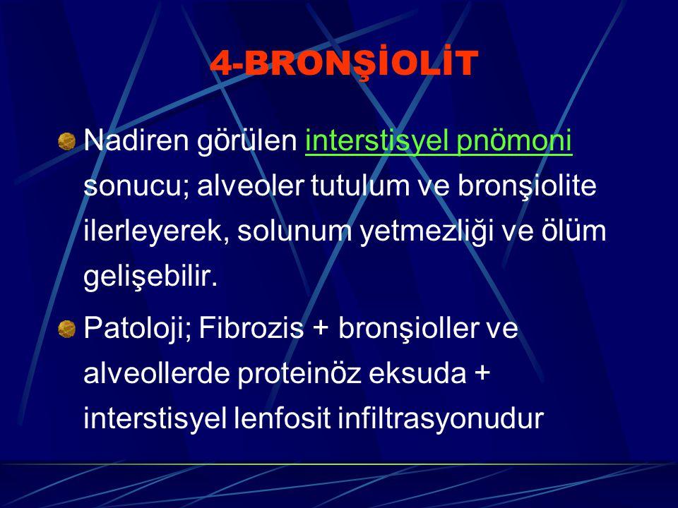 4-BRONŞİOLİT Nadiren g ö r ü len interstisyel pn ö moni sonucu; alveoler tutulum ve bronşiolite ilerleyerek, solunum yetmezliği ve ö l ü m gelişebilir.
