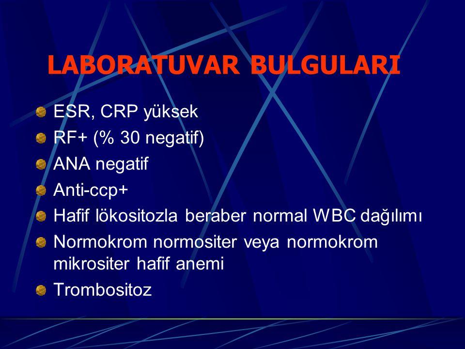 ESR, CRP yüksek RF+ (% 30 negatif) ANA negatif Anti-ccp+ Hafif lökositozla beraber normal WBC dağılımı Normokrom normositer veya normokrom mikrositer hafif anemi Trombositoz LABORATUVAR BULGULARI