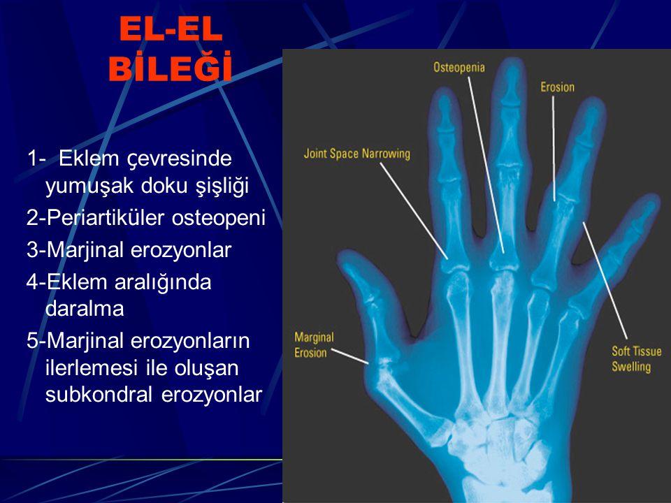 EL-EL BİLEĞİ 1- Eklem ç evresinde yumuşak doku şişliği 2-Periartik ü ler osteopeni 3-Marjinal erozyonlar 4-Eklem aralığında daralma 5-Marjinal erozyon