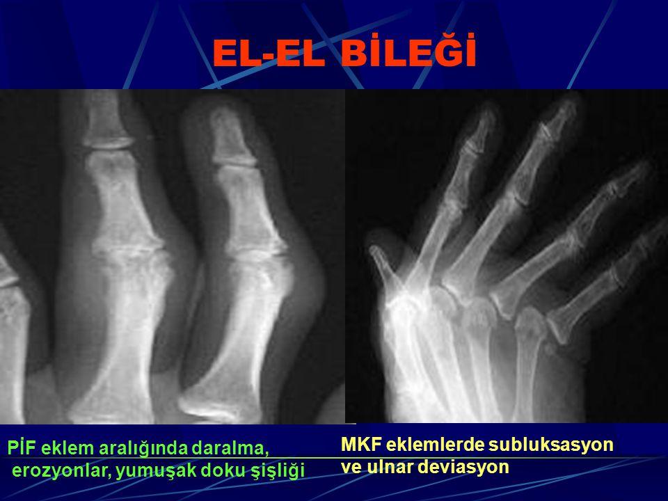 EL-EL BİLEĞİ PİF eklem aralığında daralma, erozyonlar, yumuşak doku şişliği MKF eklemlerde subluksasyon ve ulnar deviasyon