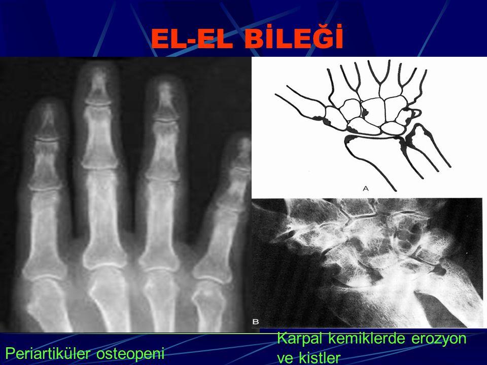 EL-EL BİLEĞİ Periartiküler osteopeni Karpal kemiklerde erozyon ve kistler