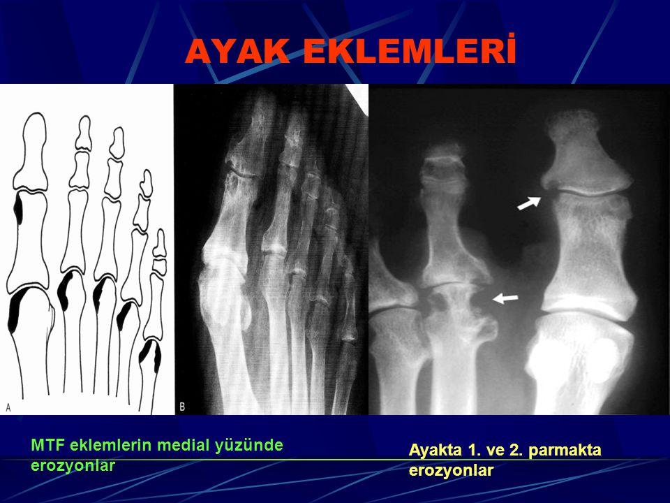 AYAK EKLEMLERİ MTF eklemlerin medial yüzünde erozyonlar Ayakta 1. ve 2. parmakta erozyonlar