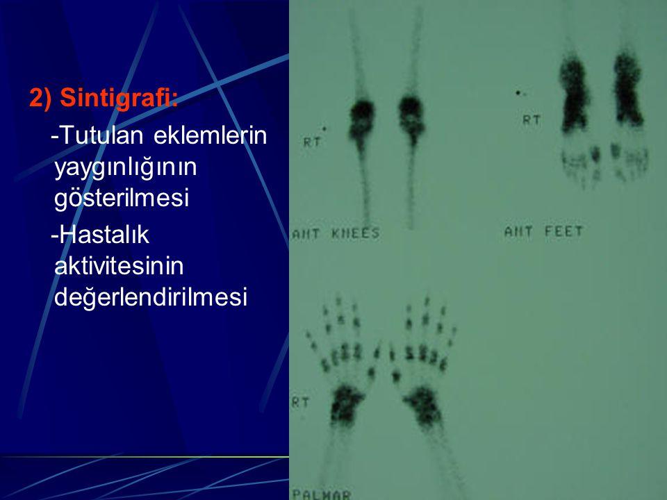 2) Sintigrafi: -Tutulan eklemlerin yaygınlığının g ö sterilmesi -Hastalık aktivitesinin değerlendirilmesi