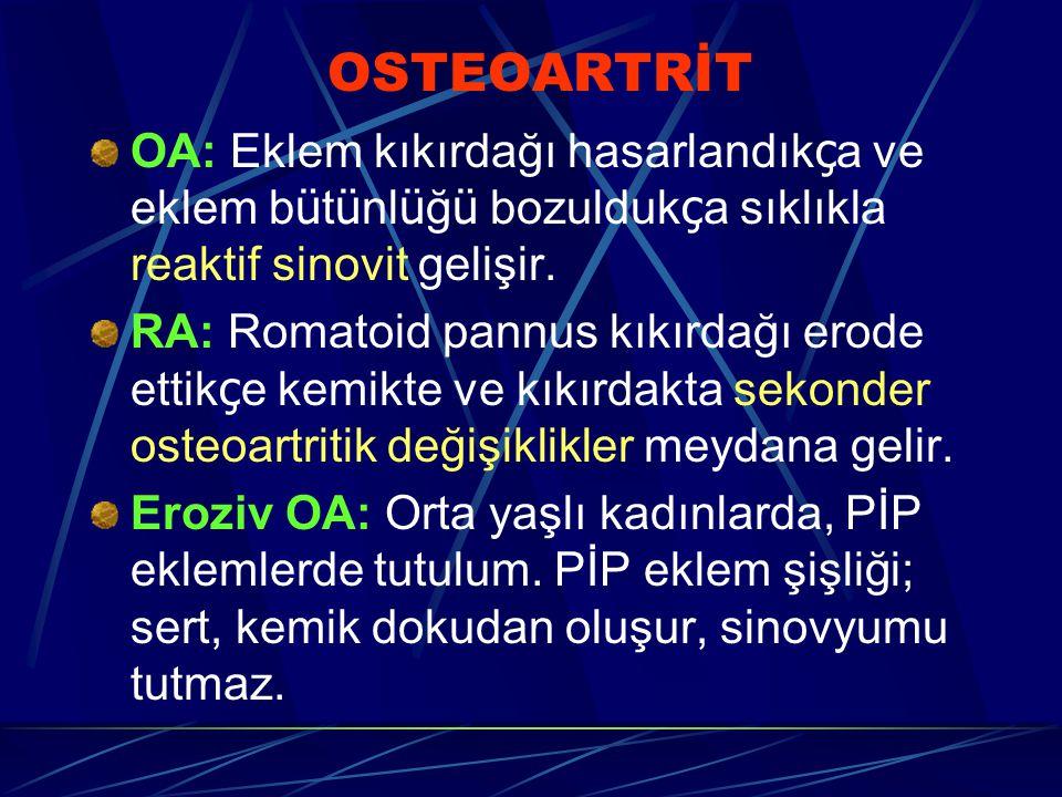 OSTEOARTRİT OA: Eklem kıkırdağı hasarlandık ç a ve eklem b ü t ü nl ü ğ ü bozulduk ç a sıklıkla reaktif sinovit gelişir. RA: Romatoid pannus kıkırdağı