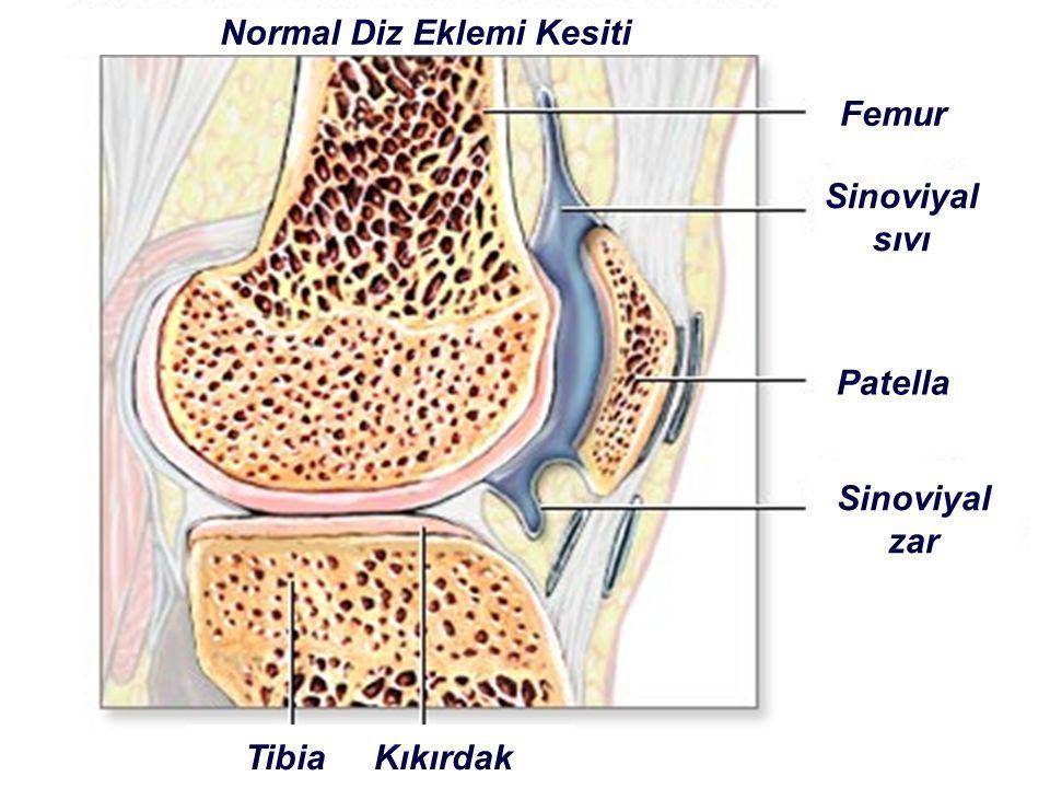 Normal Diz Eklemi Kesiti Femur Sinoviyal sıvı Patella Sinoviyal zar Tibia Kıkırdak