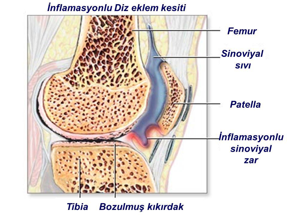 İnflamasyonlu Diz eklem kesiti Femur Sinoviyal sıvı Patella İnflamasyonlu sinoviyal zar Tibia Bozulmuş kıkırdak