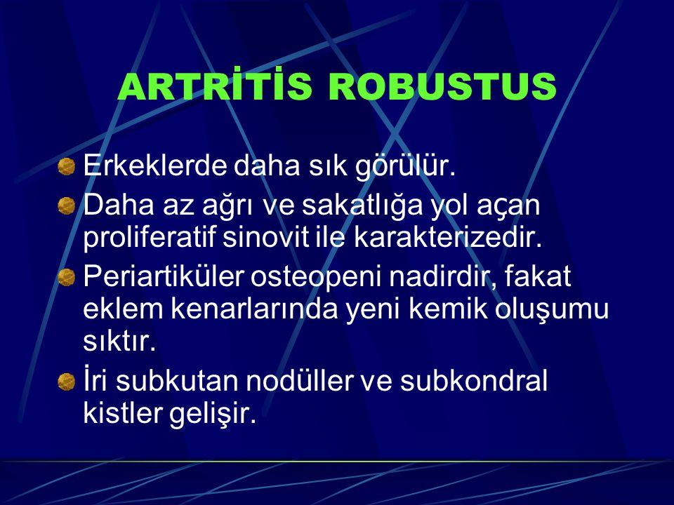 ARTRİTİS ROBUSTUS Erkeklerde daha sık g ö r ü l ü r. Daha az ağrı ve sakatlığa yol a ç an proliferatif sinovit ile karakterizedir. Periartik ü ler ost
