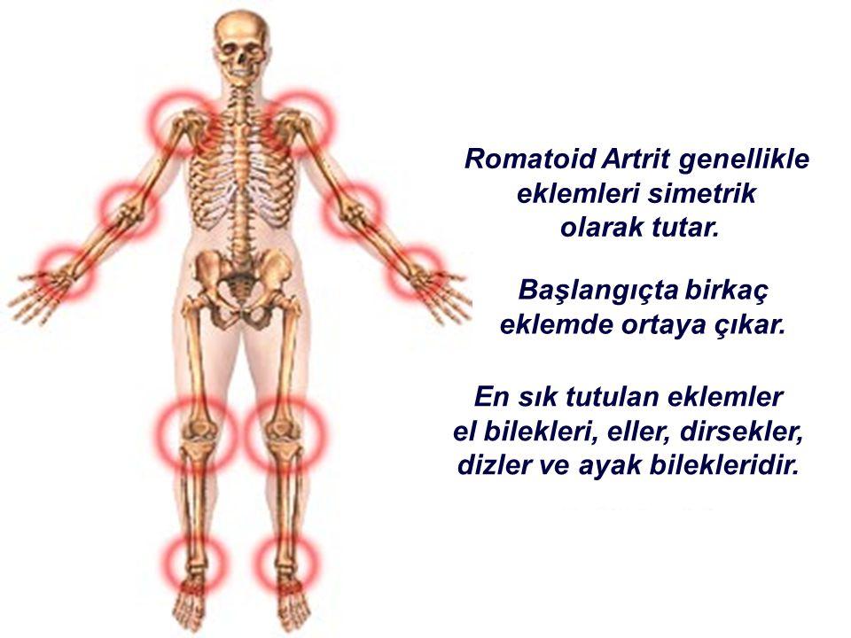 Romatoid Artrit genellikle eklemleri simetrik olarak tutar. Başlangıçta birkaç eklemde ortaya çıkar. En sık tutulan eklemler el bilekleri, eller, dirs