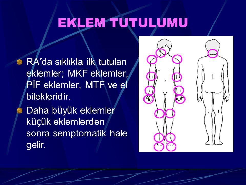 EKLEM TUTULUMU RA ' da sıklıkla ilk tutulan eklemler; MKF eklemler, PİF eklemler, MTF ve el bilekleridir.