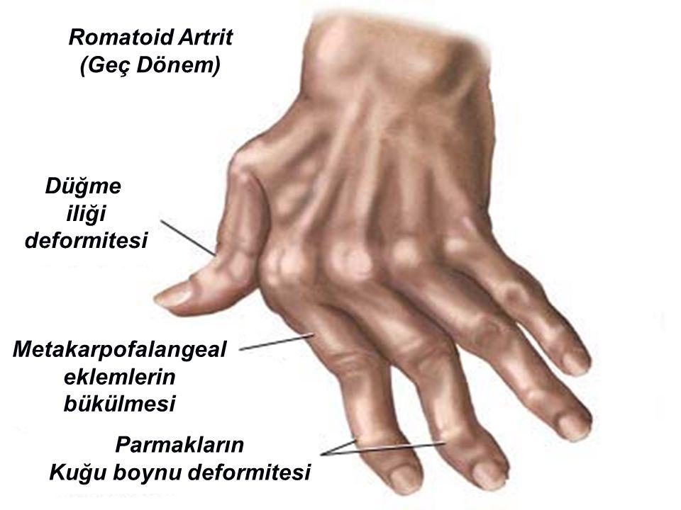 Romatoid Artrit (Geç Dönem) Düğme iliği deformitesi Metakarpofalangeal eklemlerin bükülmesi Parmakların Kuğu boynu deformitesi