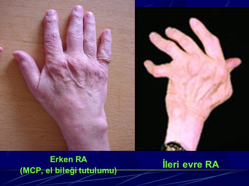 Erken RA (MCP, el bileği tutulumu) İleri evre RA