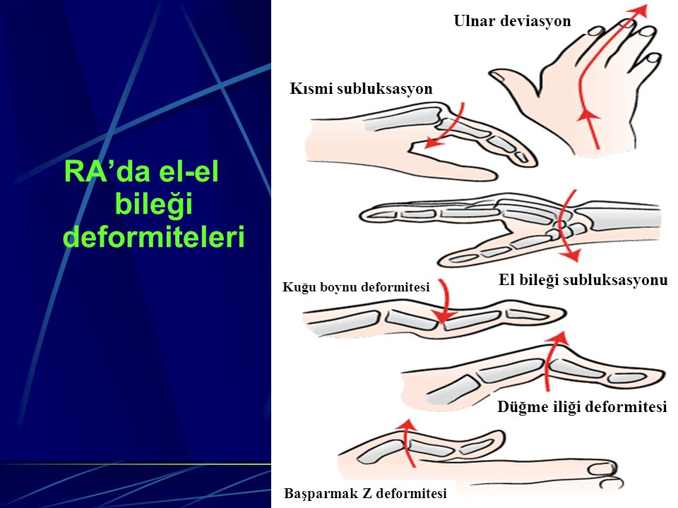 RA'da el-el bileği deformiteleri Ulnar deviasyon Kısmi subluksasyon El bileği subluksasyonu Kuğu boynu deformitesi Düğme iliği deformitesi Başparmak Z deformitesi