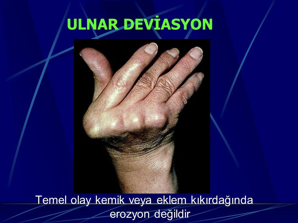 ULNAR DEVİASYON Temel olay kemik veya eklem kıkırdağında erozyon değildir