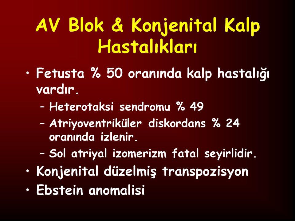 AV Blok & Konjenital Kalp Hastalıkları Fetusta % 50 oranında kalp hastalığı vardır.