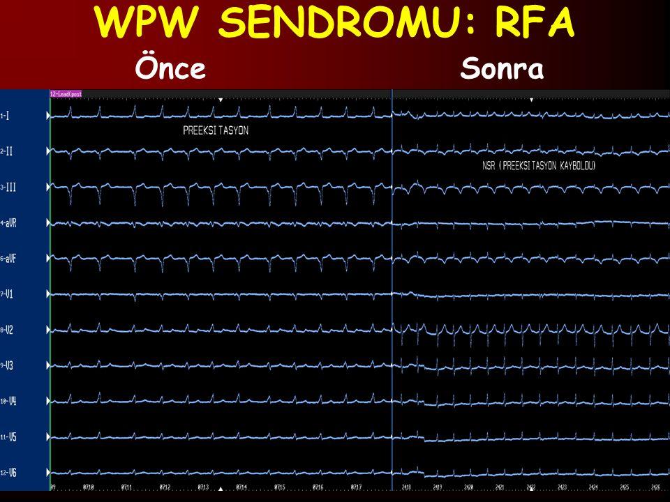 WPW SENDROMU: RFA ÖnceSonra
