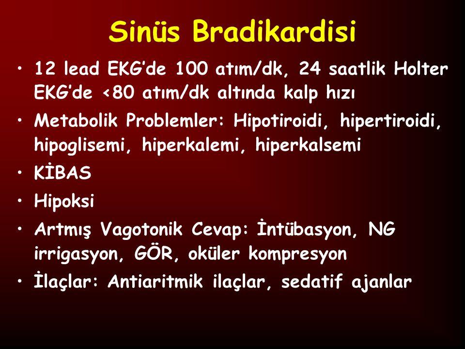 Sinüs Bradikardisini Taklit Eden Ritm Bozuklukları İkinci Derece AV Blok Bloke Atriyal Prematür Atımlar Uzun QT Sendromu AV Tam Bloklar