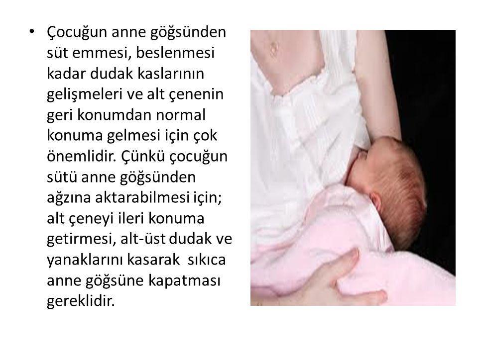 Çocuğun anne göğsünden süt emmesi, beslenmesi kadar dudak kaslarının gelişmeleri ve alt çenenin geri konumdan normal konuma gelmesi için çok önemlidir.