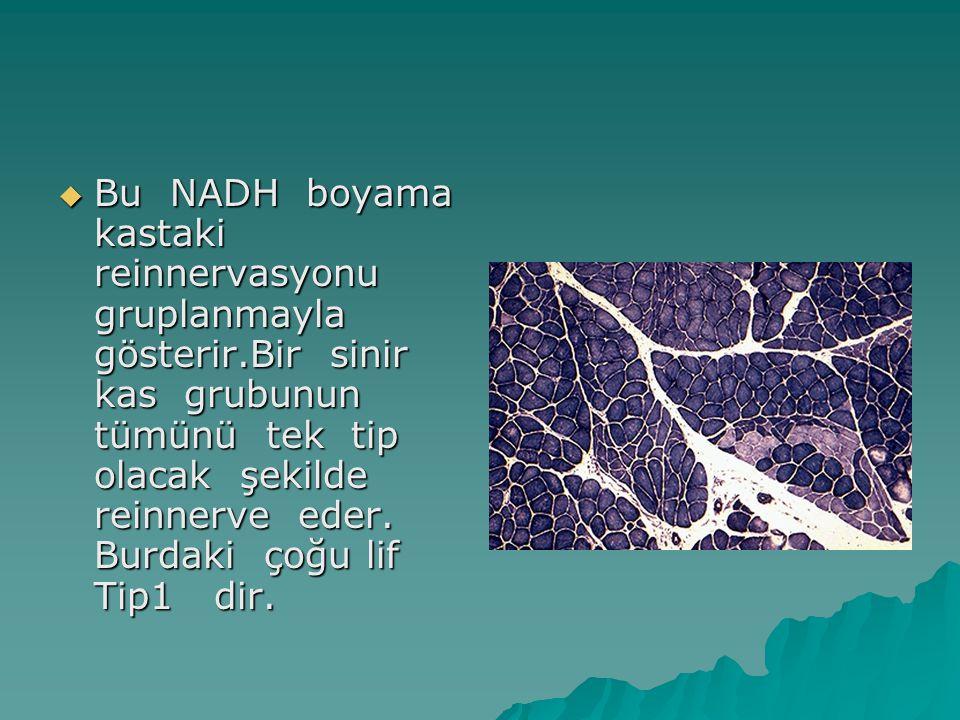  Bu NADH boyama kastaki reinnervasyonu gruplanmayla gösterir.Bir sinir kas grubunun tümünü tek tip olacak şekilde reinnerve eder. Burdaki çoğu lif Ti