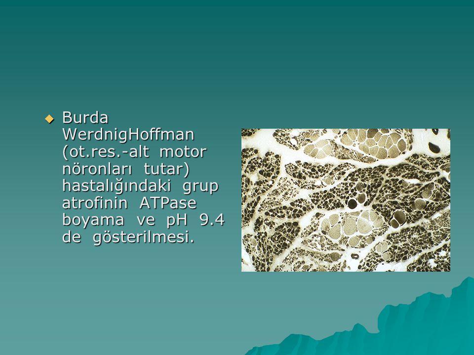  Burda WerdnigHoffman (ot.res.-alt motor nöronları tutar) hastalığındaki grup atrofinin ATPase boyama ve pH 9.4 de gösterilmesi.