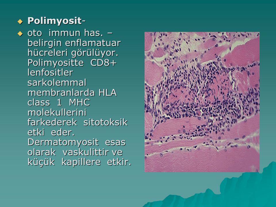  Polimyosit-  oto immun has. – belirgin enflamatuar hücreleri görülüyor. Polimyositte CD8+ lenfositler sarkolemmal membranlarda HLA class 1 MHC mole
