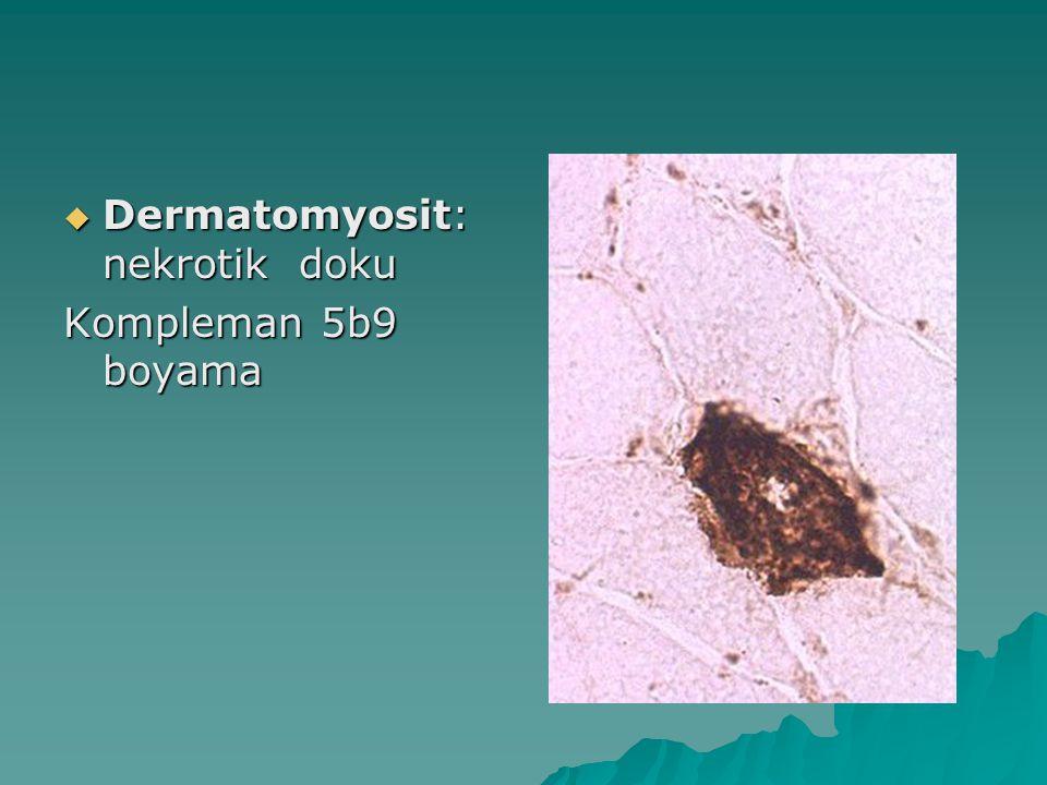  Dermatomyosit: nekrotik doku Kompleman 5b9 boyama