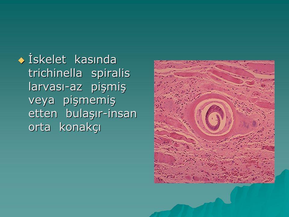  İskelet kasında trichinella spiralis larvası-az pişmiş veya pişmemiş etten bulaşır-insan orta konakçı