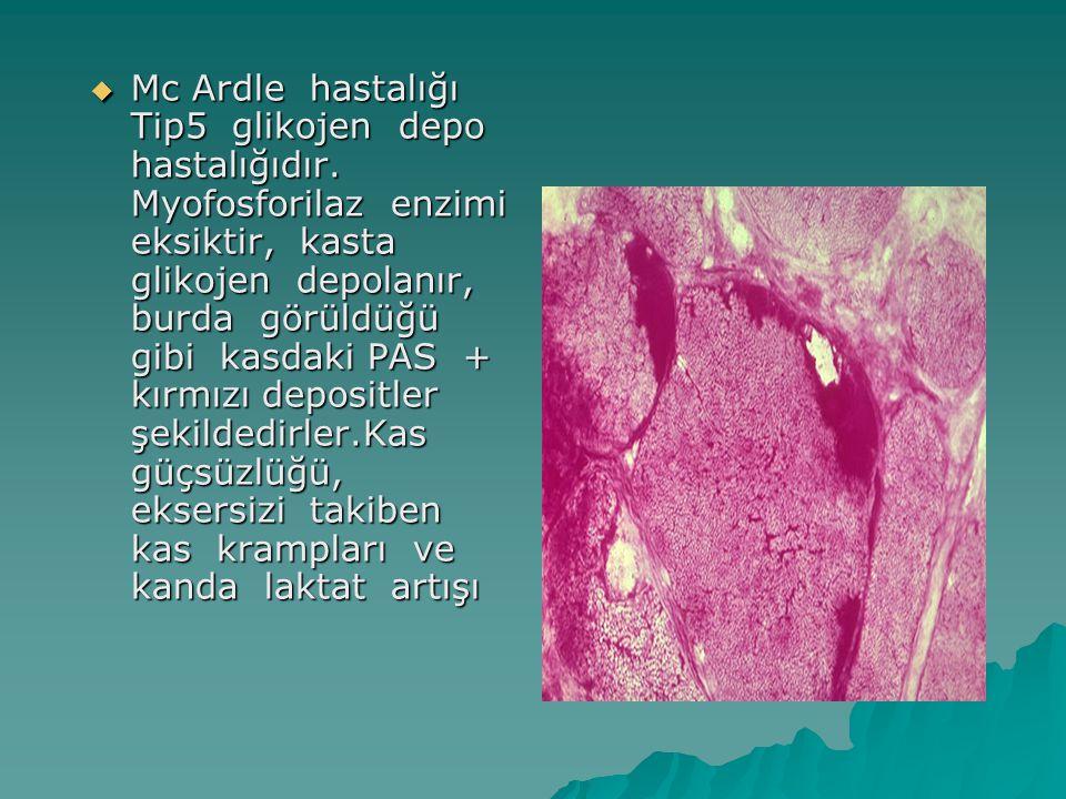  Mc Ardle hastalığı Tip5 glikojen depo hastalığıdır. Myofosforilaz enzimi eksiktir, kasta glikojen depolanır, burda görüldüğü gibi kasdaki PAS + kırm