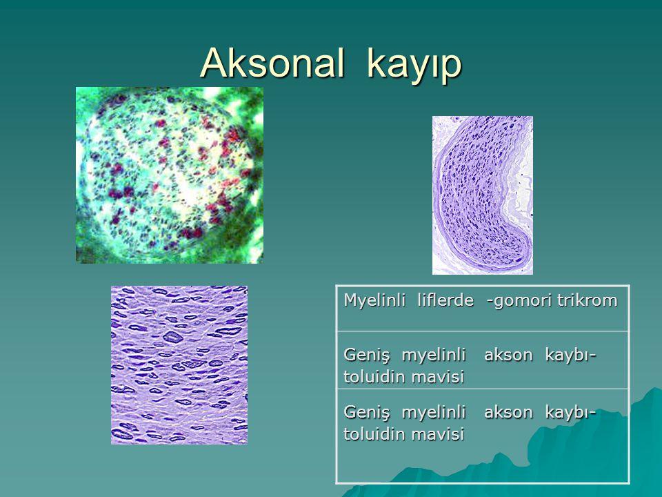Aksonal kayıp Myelinli liflerde -gomori trikrom Geniş myelinli akson kaybı- toluidin mavisi