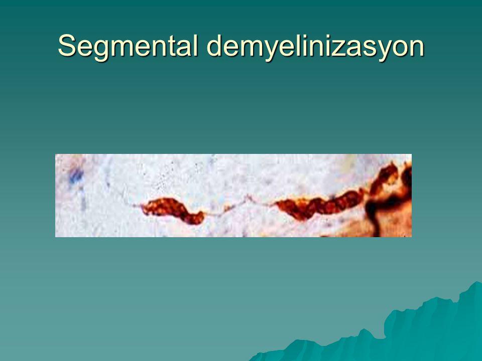 Segmental demyelinizasyon