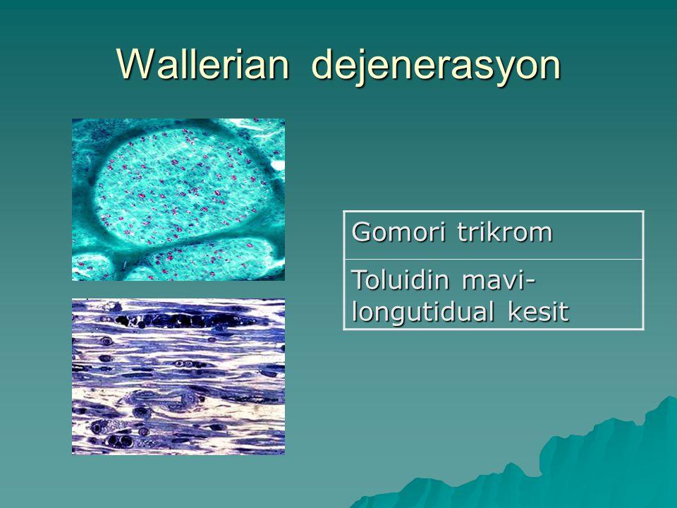 Wallerian dejenerasyon Gomori trikrom Toluidin mavi- longutidual kesit