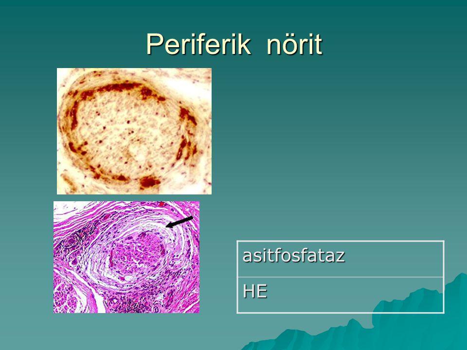 Periferik nörit asitfosfatazHE