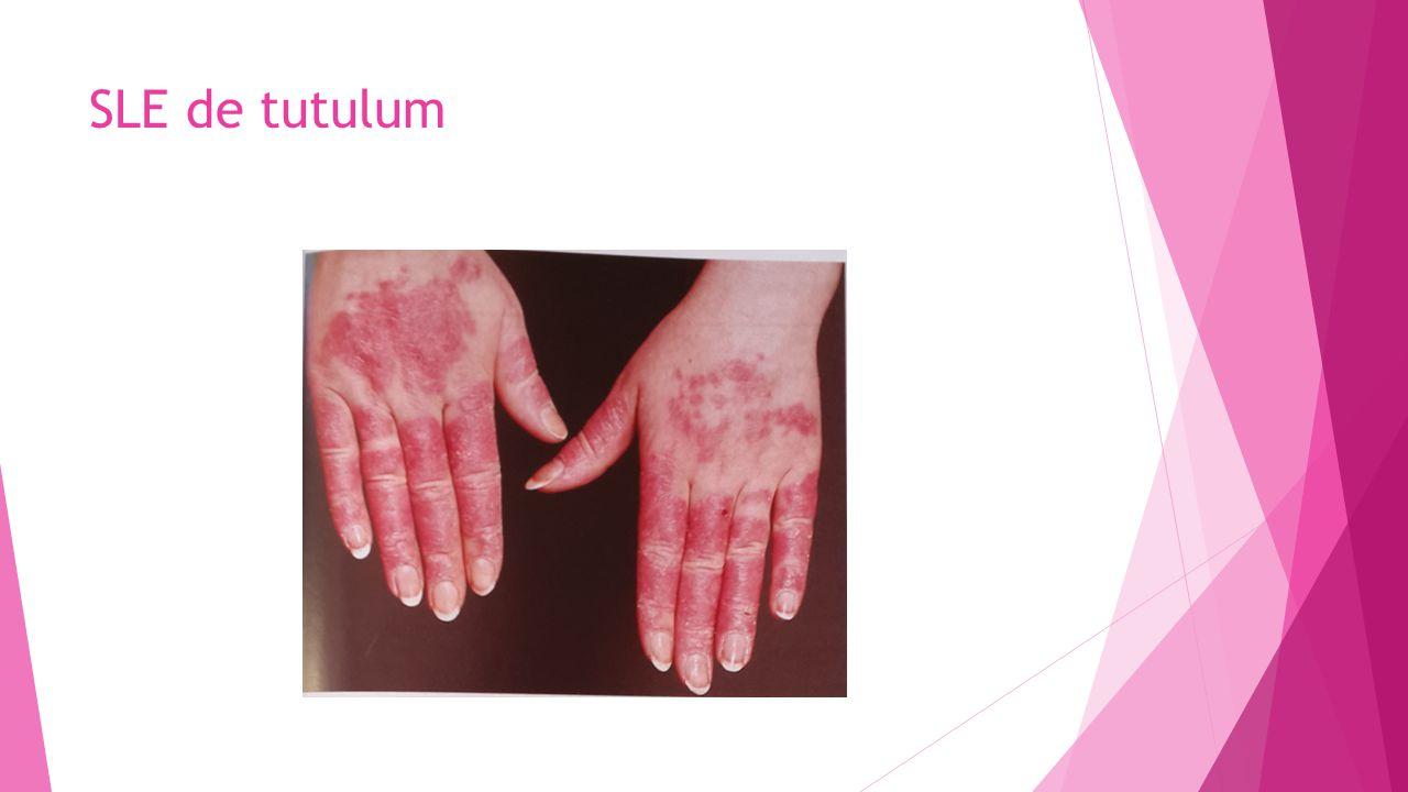 SLE de tutulum
