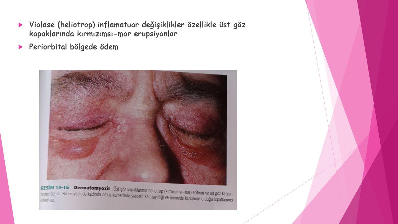  Violase (heliotrop) inflamatuar değişiklikler özellikle üst göz kapaklarında kırmızımsı-mor erupsiyonlar  Periorbital bölgede ödem