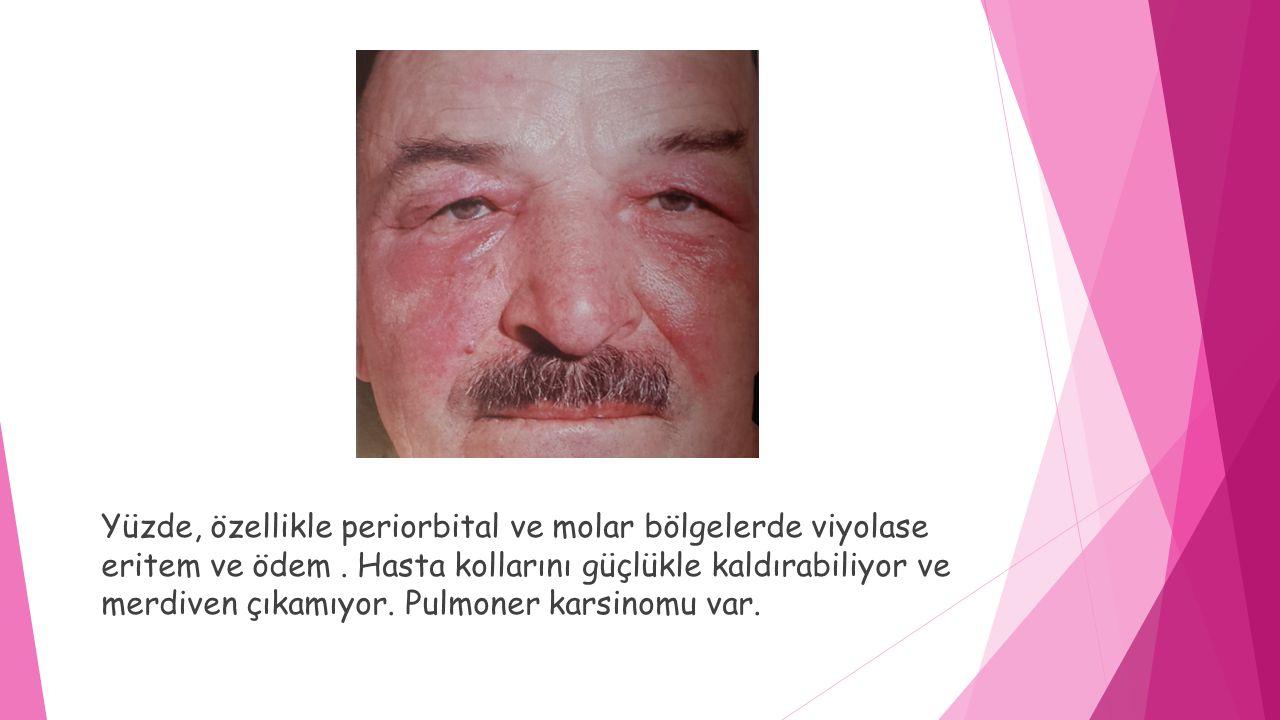  Yüz, boyun, sırt üst kısmında eritem  Gottron papülleri ;simetrik, metakarpofalangeal eklem ve interfalangeal eklem extansör yüzlerinde violase, eritematöz lezyonlar 28 yaşında erkek hasta şiddetli kas güçsüzlüğü var.