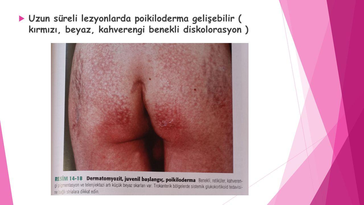  Uzun süreli lezyonlarda poikiloderma gelişebilir ( kırmızı, beyaz, kahverengi benekli diskolorasyon )