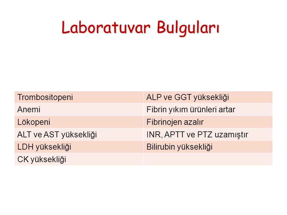 Laboratuvar Bulguları TrombositopeniALP ve GGT yüksekliği AnemiFibrin yıkım ürünleri artar LökopeniFibrinojen azalır ALT ve AST yüksekliğiINR, APTT ve PTZ uzamıştır LDH yüksekliğiBilirubin yüksekliği CK yüksekliği