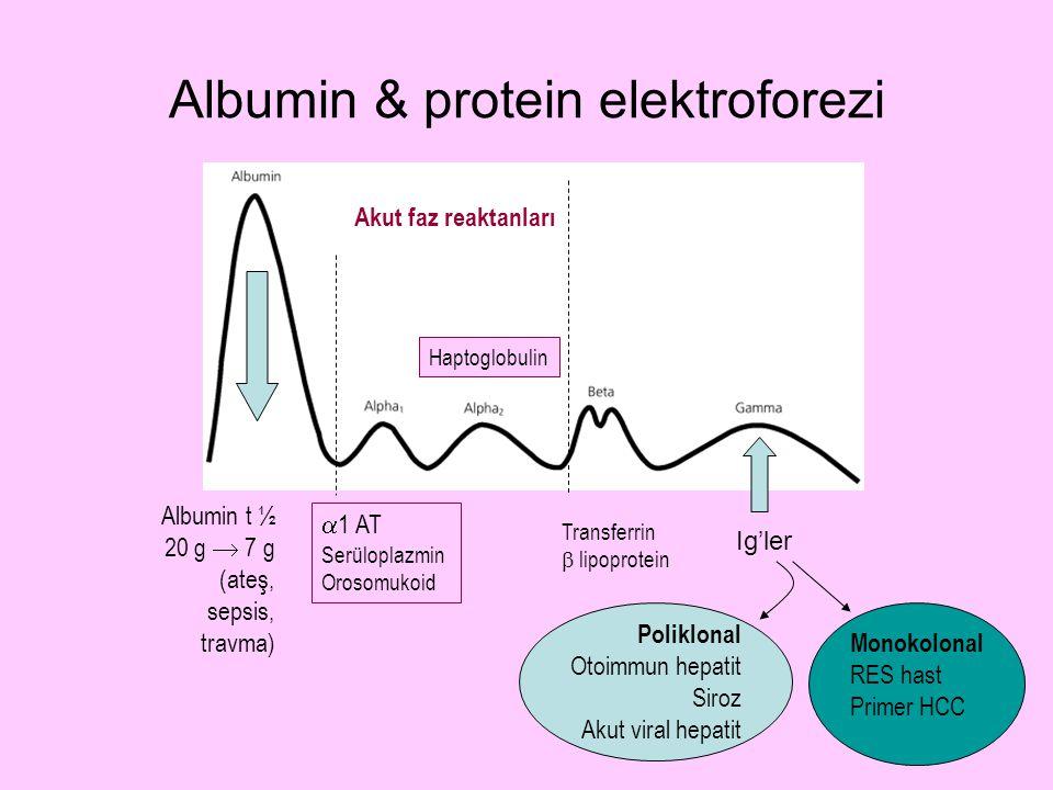 Albumin & protein elektroforezi Albumin t ½ 20 g  7 g (ateş, sepsis, travma)  1 AT Serüloplazmin Orosomukoid Haptoglobulin Akut faz reaktanları Tran