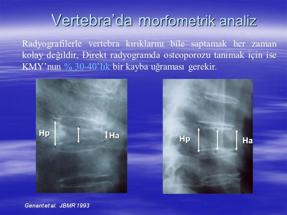 Vertebra'da m orfometrik analiz Hp Ha Radyografilerle vertebra kırıklarını bile saptamak her zaman kolay değildir, Direkt radyogramda osteoporozu tanı