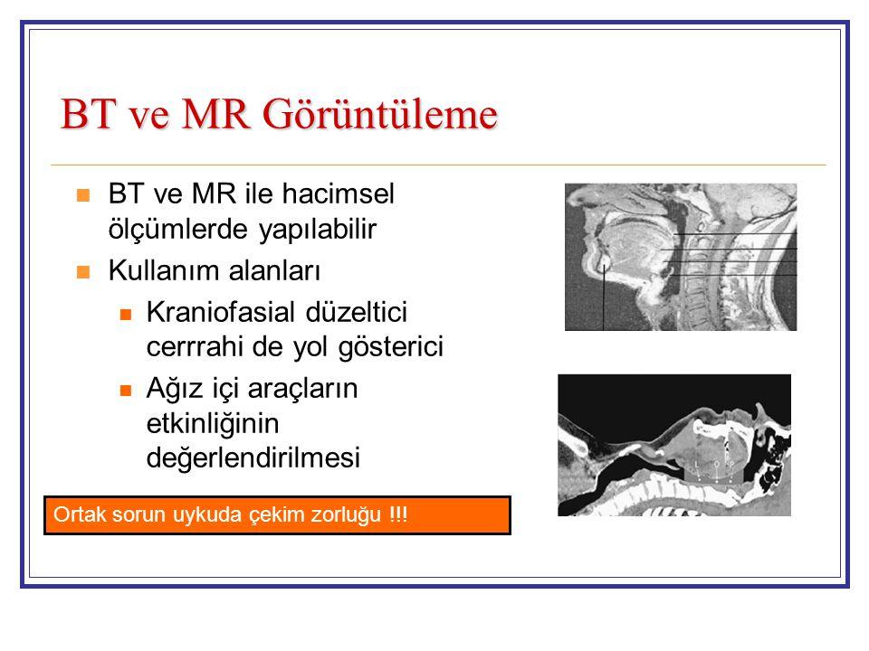BT ve MR Görüntüleme BT ve MR ile hacimsel ölçümlerde yapılabilir Kullanım alanları Kraniofasial düzeltici cerrrahi de yol gösterici Ağız içi araçların etkinliğinin değerlendirilmesi Ortak sorun uykuda çekim zorluğu !!!