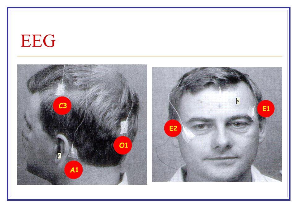 EOG- EMG