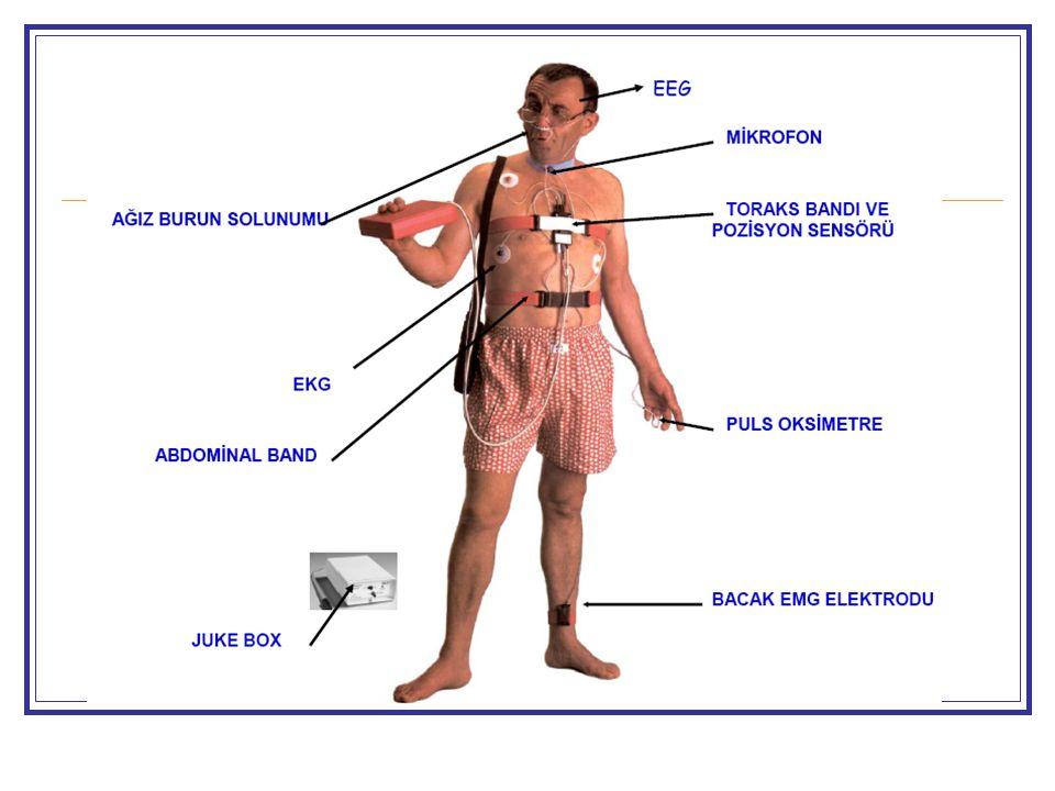 Polisomnografi Kuralları Genel muayene ve tetkikler Saat 20.00'da laboratuvara alınır PSG yapılacak gün çay, kahve, alkol almamalıdır PSG'yi etkileyebilecek ilaçlar kesilmelidir Sensörler bağlanıp hastanın uykusu geldiğinde çalışma başlatılır PSG kaydı en az 6 saat olmalıdır